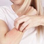 Печень и заболевания кожи