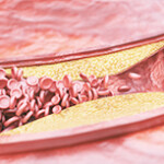 Атеросклероз сосудов мозга_ симптомы и особенности лечения