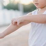 Откуда лишай у ребенка
