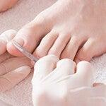 Удаление ногтей, пораженных грибком